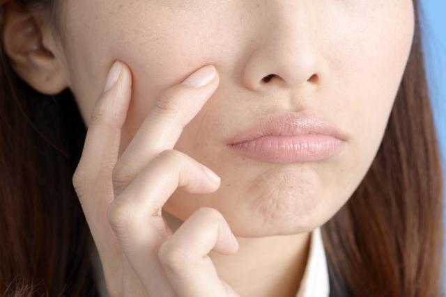 多くの女性が乾燥肌に悩んでいます